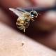 Puntura di un'ape